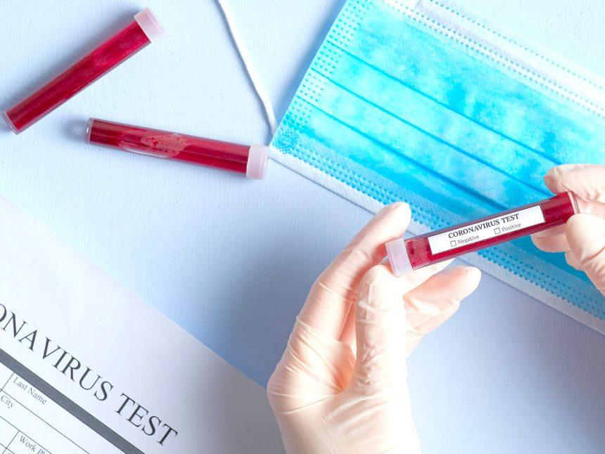 Coronavirus Bluttest